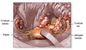 Obat Alami Tumor Ovarium
